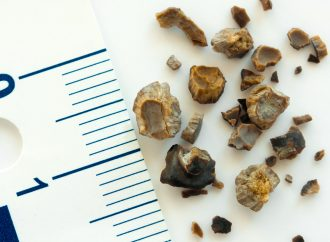 Kidney Stones on the Rise Among Women